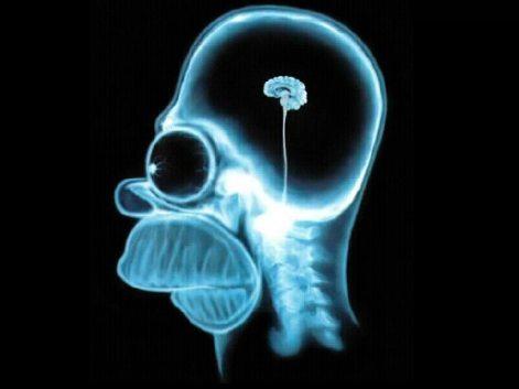 homer_brain_scan
